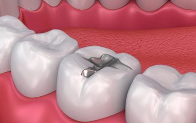 Mercury Fillings The Poison in your Mouth